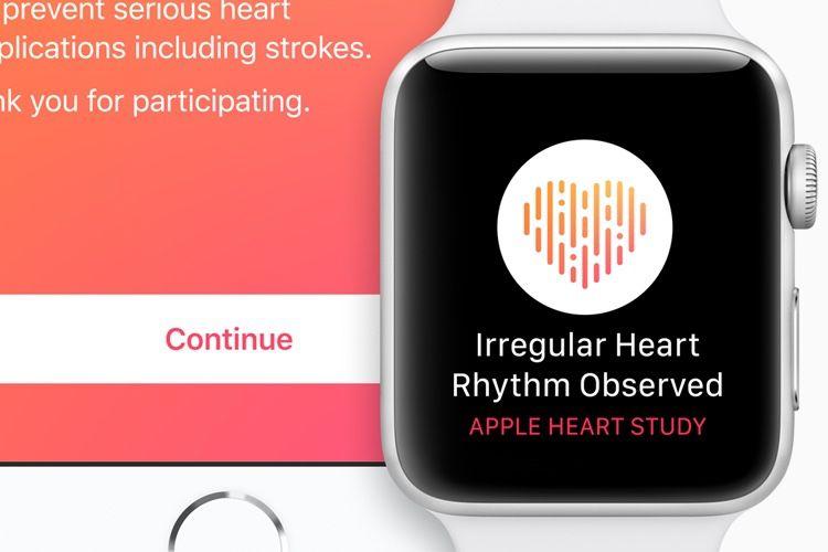 0,5% des participants à l'étude clinique d'Apple sur le cœur ont reçu une alerte de fibrillation atriale