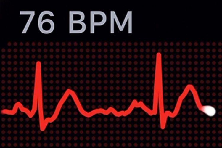 Résultats mitigés pour l'étude cardiaque de l'Apple Watch