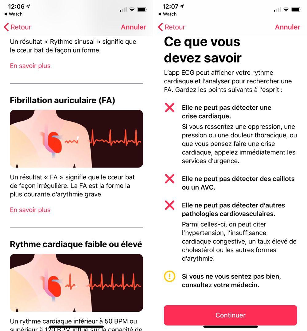 WatchOS 5.2 est disponible : électrocardiogramme activé en France