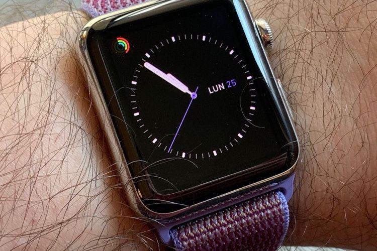 Apple Watch : qu'est-ce qu'elle a ma gueule?