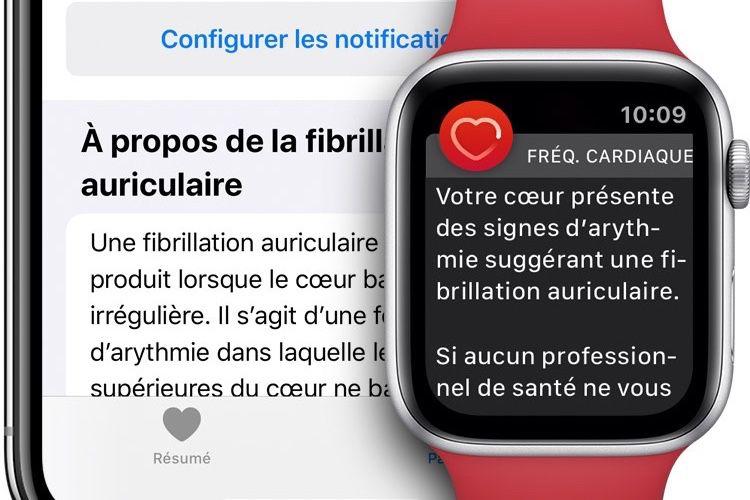 watchOS6.2 en GM : achats In-Apps, correctif et ECG dans 3 nouveaux pays